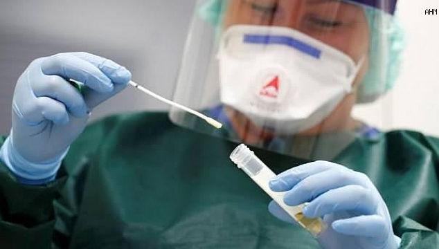 Zorunlu PCR, vakaları artırdı